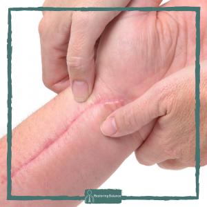 Wrist Scar